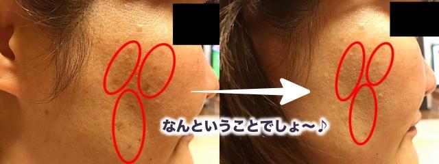 シミウスがもたらす肌への効果とは