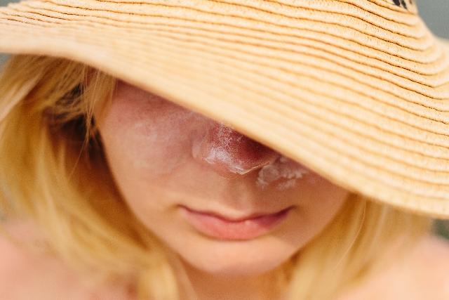 シミウス|日焼けによるシミ・そばかす防止