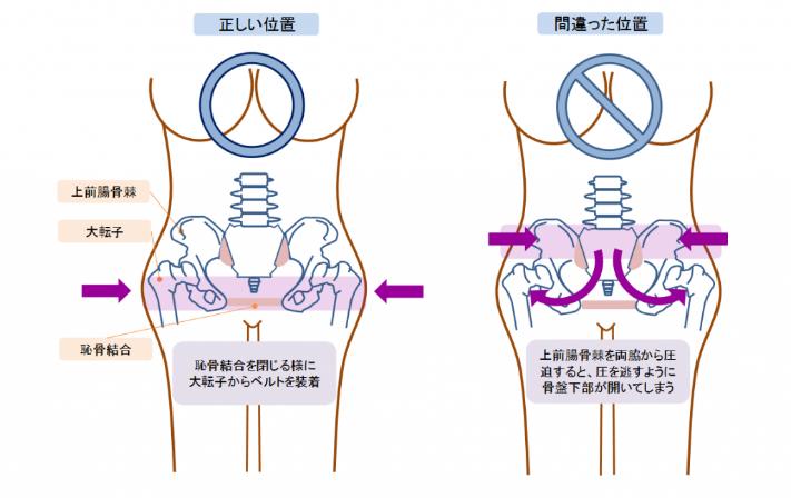 帝王切開後のダイエット|骨盤ベルトを締める位置