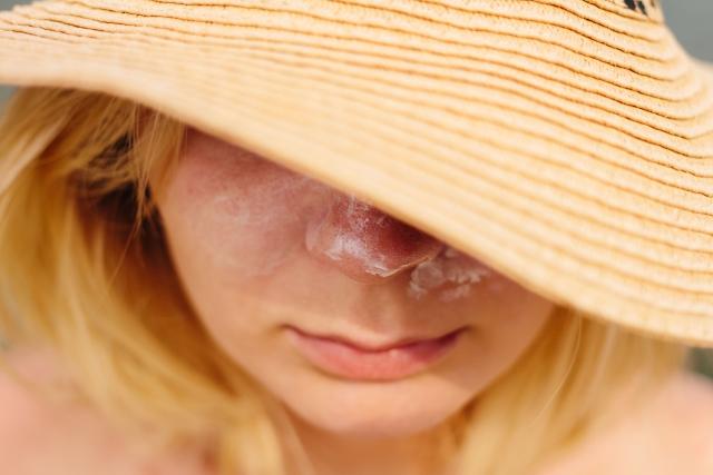 子供のそばかすの原因は遺伝?皮膚科に行かずに消す方法