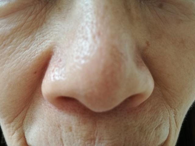 【ロスミンローヤル】効果なし?56歳の母が効果を体験口コミ