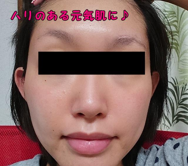 シグナリフトの口コミ【本当の効果を暴露】幹細胞美容液は効果なし?