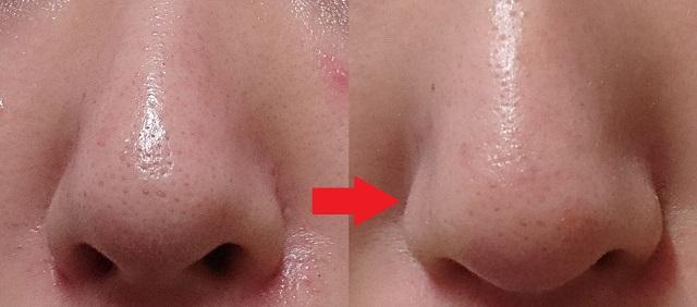 ヴィーナスプラセンタ原液の口コミ 効果なし?3週間体験ブログ
