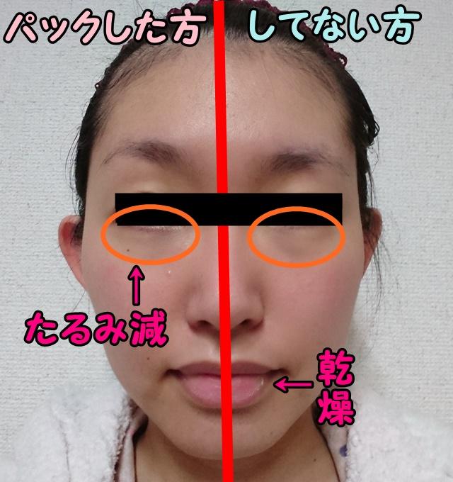 ミエルドアンジュの口コミ体験|ニキビに効果なし?顔半分で徹底比較
