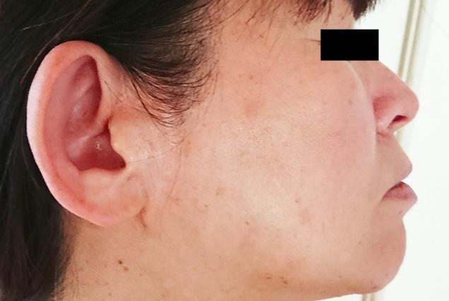 ロスミンリペアクリームホワイトの口コミ9ヶ月体験談【効果を検証】